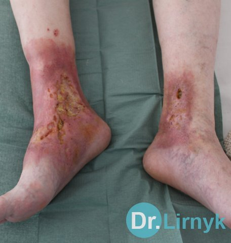 Trophic ulcer on both legs, which was not heal for 15 years, foto before treatment