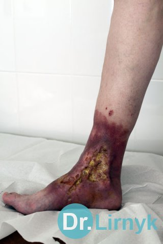 Trophic ulcer on right lower limb. Large view at the beginning of treatment.