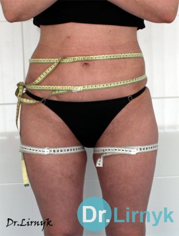 Result: Reduction in waist circumference and hip to 4 cm after 10 procedures. Restored skin elasticity.