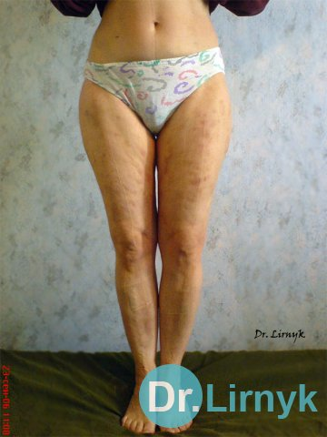 The decrease in waist circumference and hip to 7 cm after 12 procedures. Restore skin elasticity.