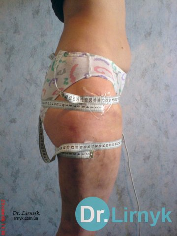 Cellulitis after treatment 2a