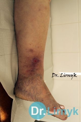 Varicose veins: the end of treatment