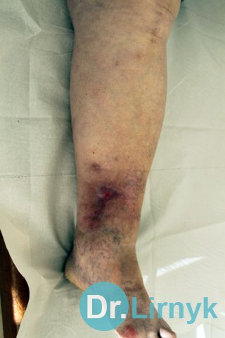 Trophic ulcer in the middle of treatment, the patient 77 years old