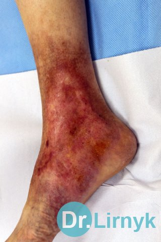 Trophic ulcer on right lower limb. Result of treatment during 2 months. Large view