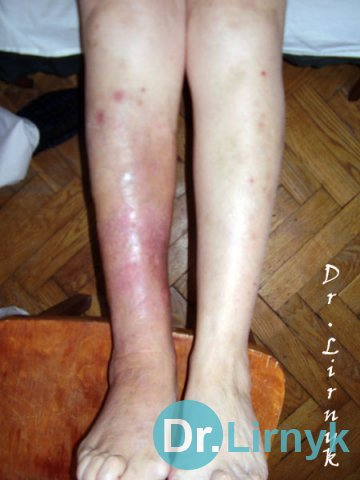 Erysipelas: after treatment. Treatment for 7 days.