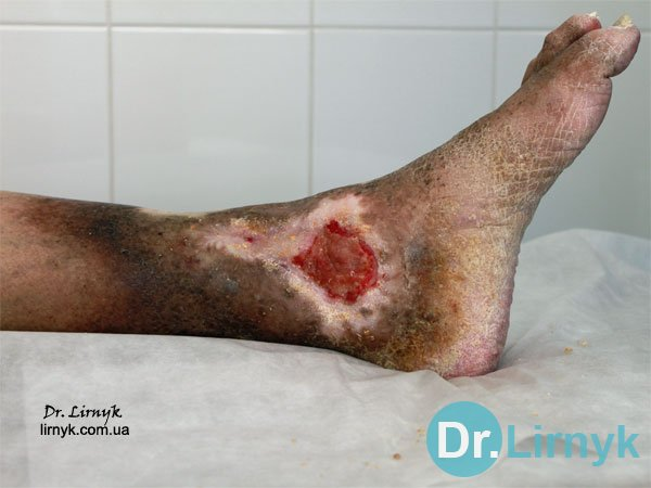Trophic ulcer of left tibia on the inner surface during the treatment