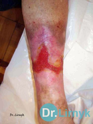 Trophic ulcer on the left lower limb in the middle of treatment