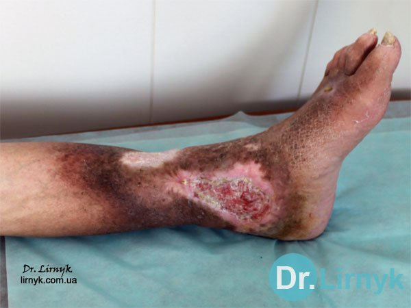 Trophic ulcer of left tibia (inner surface) before treatment