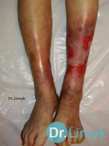 Trophic ulcer on both lower limb in the middle of treatment
