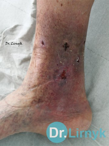 The end of treatment. Removed stitches. Improved blood circulation in the area of ​​trophic disorders