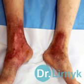Trophic ulcer on both lower limbs in the end of treatment