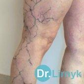После 1 сеанса склеротерапии. Разметка вен кожным маркером перед вторым сеансом.